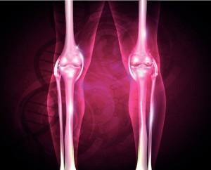 arthrose (2)